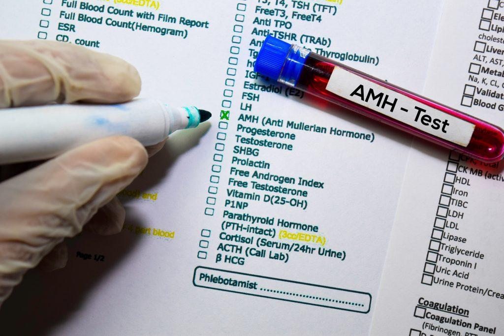AMH Testi Nedir? AMH Değeri Kaç Olmalı?
