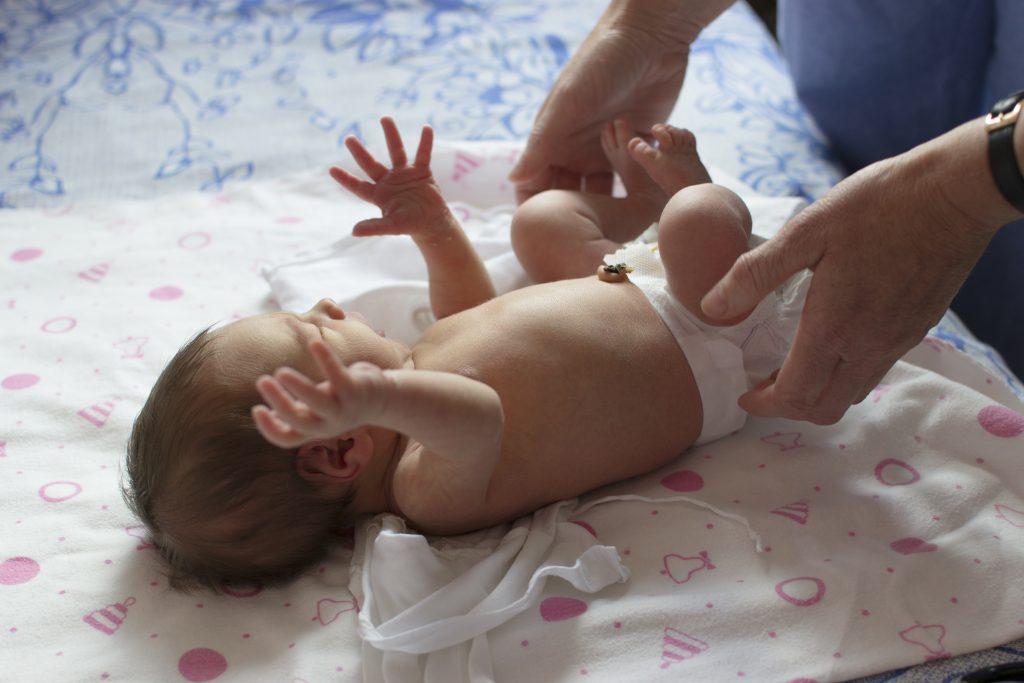 Bebeklerde Göbek Fıtığı