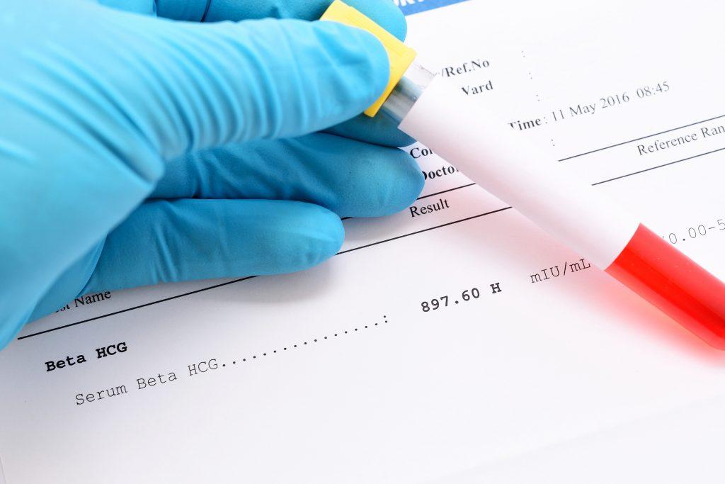 Beta HCG Hesaplama