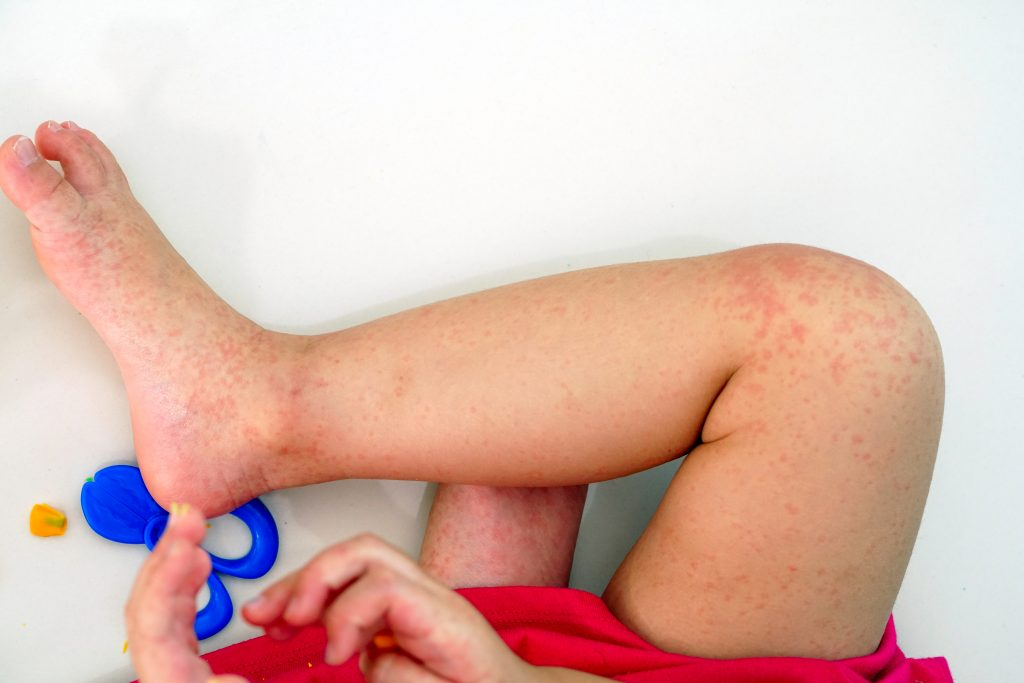 Çocuklarda Altıncı Hastalık (Rozeola)