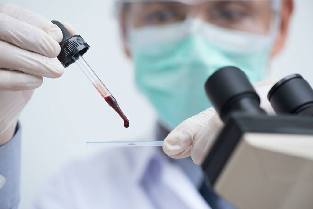 Hemogram Testi Nedir?