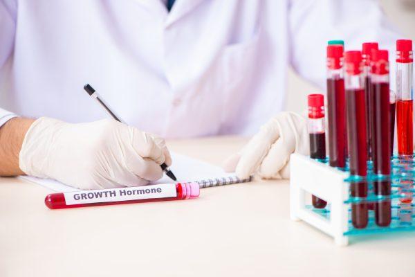 Hormon Testi Nedir? Nasıl Yapılır?