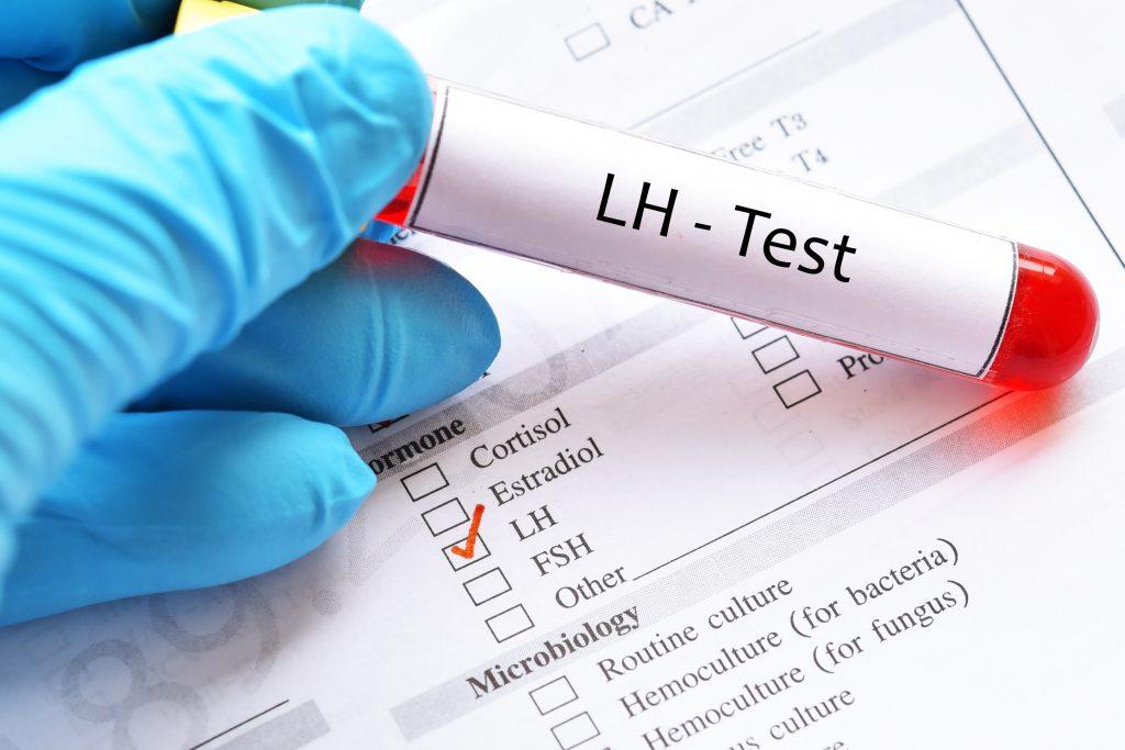 LH Hormonu Nedir? LH Hormonu Kaç Olmalı?