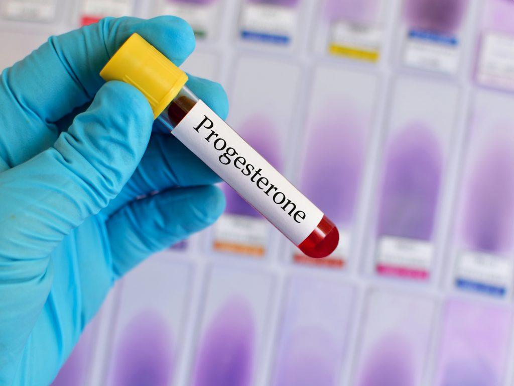 Progesteron Kaç Olursa Hamile Kalınır?
