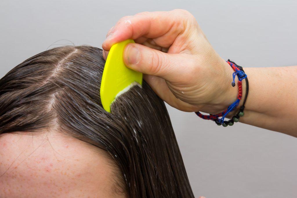 Saç Biti Nasıl Temizlenir? Çocuklarda Bit